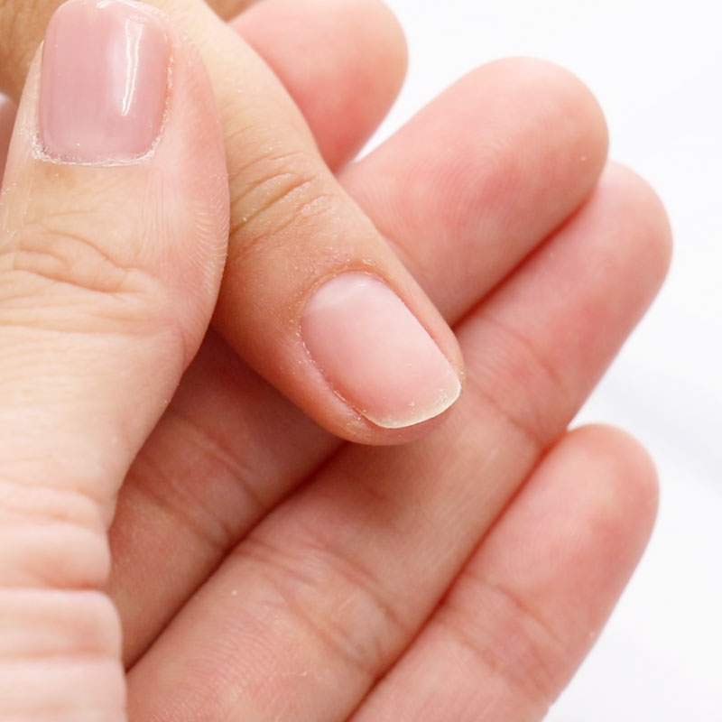 How to Apply Extension Gel on a Nail with Thick Nail Fold